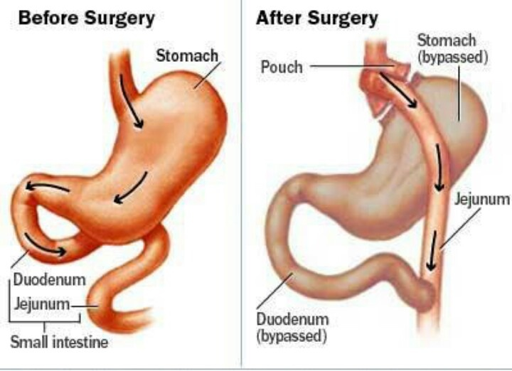 Bypass gastrico, costi