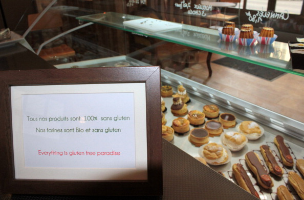 Gluten-free pastries are displayed in a