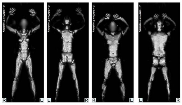 Scansione al body scanner